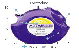 loratadine 10mg low price